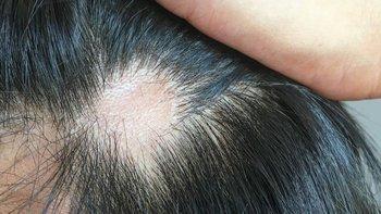 La caída del cabello causada por el coronavirus suele ser temporal.