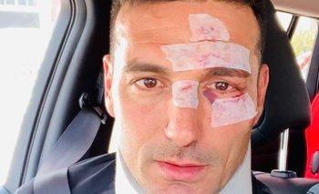 La foto que subió Scaloni tras el accidente