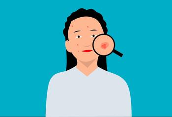 El acné y la ansiedad tienen relación, aunque es menor de la que se cree