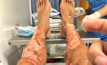 Así quedaron las piernas de Mathías Cardacio tras las quemaduras