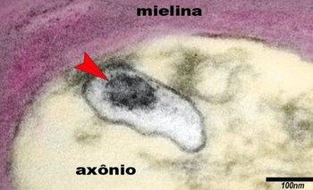 La imagen muestra un axón de una neurona en el cerebro de un niño con síndrome inflamatorio multisistémico pediátrico (SIM-P). La flecha señala al virus SARS-CoV-2 en una vesícula en el citoplasma del axón.