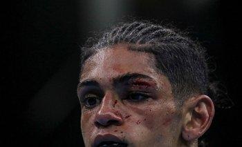 Así quedó Lucas Fernández tras salir a pelear con un corte