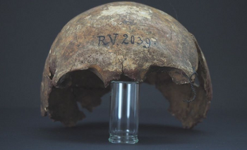 BGAEU, BERLIN El hombre infectado era un cazador-recolector de entre 20 y 30 años de edad