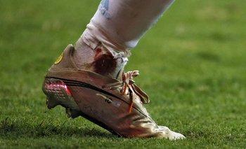 Así quedó el tobillo de Messi