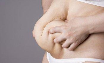 Perder mucho peso es bueno para la salud, pero tiene sus inconvenientes. (Foto de archivo)