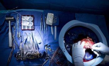 El riñón donado al único paciente que sigue con vida le tuvo que ser extraído