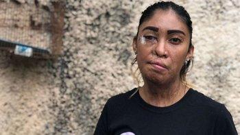 Esmeralda Millán sufrió un ataque de ácido en Puebla, México.