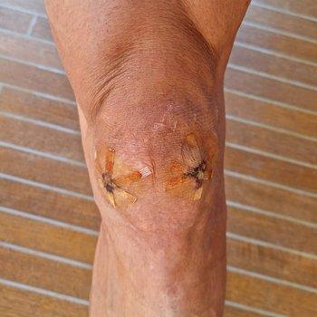 Así estaba la rodilla de Zlatan hace tres meses