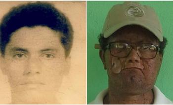 Deíde Freire de Andrade a los 18 años y ahora. Por culpa de esta extraña enfermedad perdió parte del rostro.