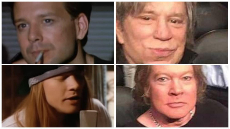 ¿Qué les pasó en el rostro a Axl Rose y Mickey Rourke?