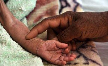 Mujer sostiene la mano de un niño yemení con malnutrición, en Saná