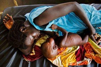 Una madre amamanta a su hijo que sufre de desnutrición en Sudán del Sur