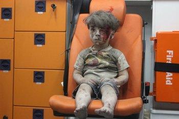 El pequeño resultó herido en un bombardeo ruso a Alepo