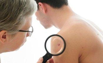 La autoexploración es fundamental para una detección temprana del cáncer de piel.