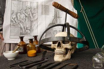 La perforación de cráneos -o trepanación- se practica desde la prehistoria.