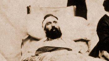 Cerca de la mitad de los heridos que recibieron cirugía craneal durante la Guerra Civil en EE.UU. fallecieron.