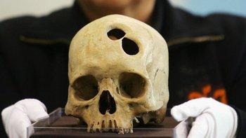 El cráneo perforado de una mujer inca, una de muchas evidencias de trepanación halladas en Perú.