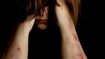 La salud mental de las personas ha sido afectada por la crisis del covid-19