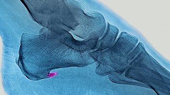 Para tratar de minimizar el dolor es posible que el cuerpo modifique su forma de caminar de una manera inconsciente, lo que puede ocasionar problemas en otras zonas del pie, la rodilla y la cadera.