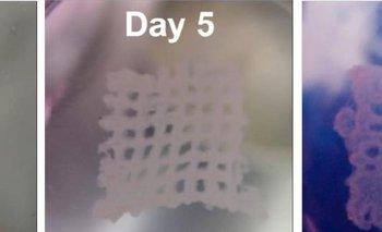 Progresión de las células de cáncer impresas sobre la matriz